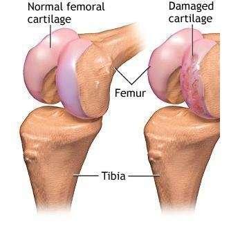 Damaged-knee-cartilage-London-knee-surgeon