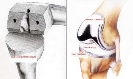Knee-replacement-surgery-London