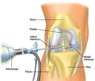 London-surgical-repair-of-the-meniscus
