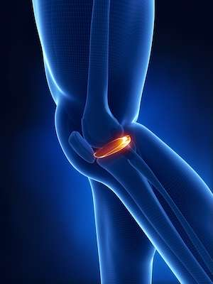 New-treatment-for-meniscus-tears