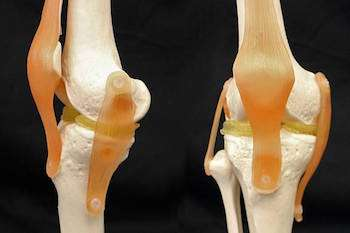 Meniscus repair with 3D printed cartilage
